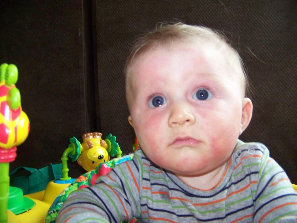 Eczema reactions to foods